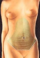 Abdominoplasty in Glendale, CA