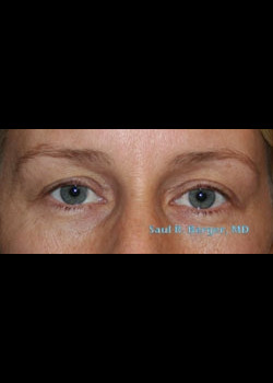 Blepharoplasty – Case 4