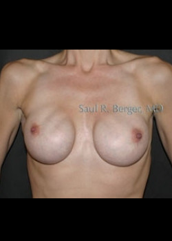 Breast Implant Revision – Case 6