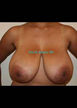 Breast Reduction – Case 10